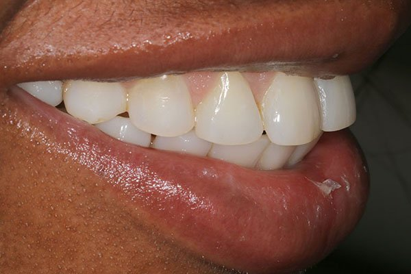 lola-after-teeth-whitening-3
