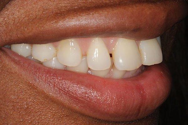 lola-before-teeth-whitening-3