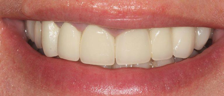 dental-smile-makeover